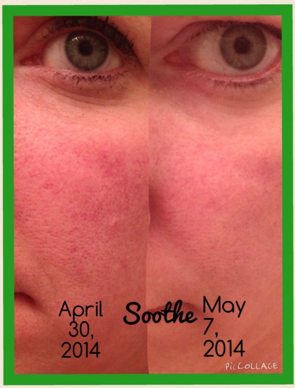 before and after rodan + fields